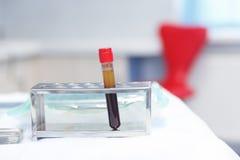 Plasma de sangue em uns tubos de ensaio para plasmalifting imagens de stock royalty free