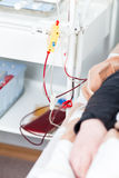 Plasmapheresis Royalty Free Stock Photography