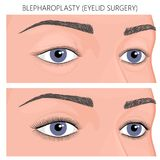 Plast- surgery_Blepharoplasty ögonlockkirurgi stock illustrationer