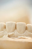 Plaster cast of front teeth. Plaster cast of upper front teeth in a dental lab Royalty Free Stock Photo