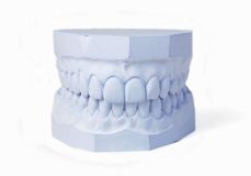Plaster cast of set of teeth Stock Photo