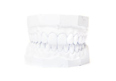 Plaster cast of teeth Royalty Free Stock Photography