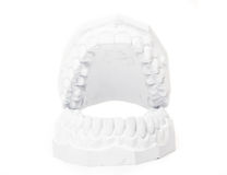 Plaster cast of teeth Stock Photography