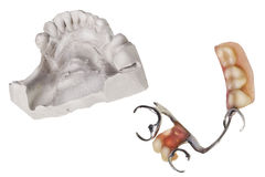 Plaster cast of  teeth and dentures Royalty Free Stock Image