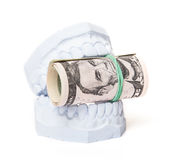 Plaster cast of teeth with dollar notes Royalty Free Stock Images