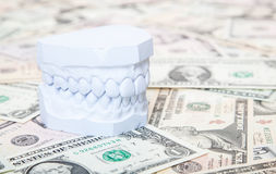 Plaster cast of teeth on dollar notes Royalty Free Stock Photography
