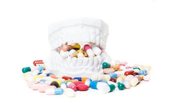 Plaster cast of teeth full of pharmaceuticals Royalty Free Stock Image