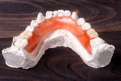 Plaster cast of teeth with removable partial denture on a dark wooden background Royalty Free Stock Photo