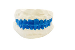 Plaster dental mold with blue painted teeth on isolated white Stock Images