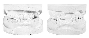 Plaster model before and after a brace Royalty Free Stock Photography