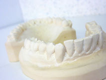 Plaster teeth Stock Image