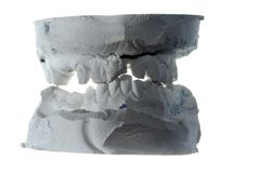 Plaster teeth cast Stock Photo