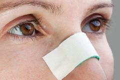 Plaster on wound nose Royalty Free Stock Photography