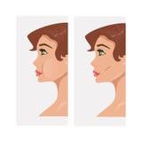 Plastic cheekbones. Vector Illustration Stock Image