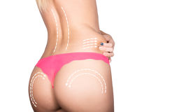 Plastic or cosmetic surgery, cellulite correction, people and bodycare concept. female in pants with lines Stock Images