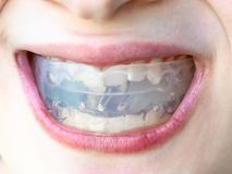Plastic orthodontic trainer for bite correction. Plastic orthodontic trainer for correction of teeth bite in mouth of teenager stock photography