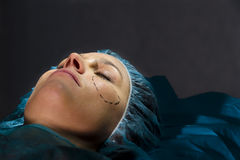Plastic Surgery. Woman receiving Plastic Operation, close-up Stock Photos