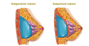 Plastic surgery. Of breast implant illustration Royalty Free Stock Photography