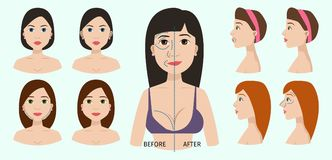 Plastic surgery body parts woman correction anaplasty medicine skin treatment beauty health procedure vector. Illustration. Human patient medical surgeon person Royalty Free Stock Photo