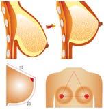 Plastic surgery of breast Stock Photo