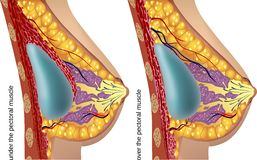Plastic surgery of breast implants. Vector. Illustration Royalty Free Stock Photo