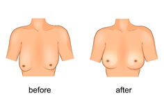 Plastic surgery breast before and after. Vector illustration of plastic surgery of the breast. before and after Royalty Free Stock Photography