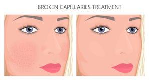 Plastic surgery_Broken Capillaries Treatment. Vector illustration. Broken capillaries on face skin cheeks, nose before, after treatment. For advertising of vector illustration