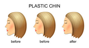 Plastic surgery of the chin.before and after Stock Photos