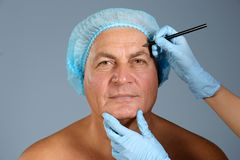 Plastic surgery concept. Hands marking male face. On grey background royalty free stock images
