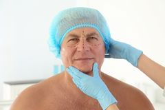 Plastic surgery concept. Senior man with marks Stock Photography