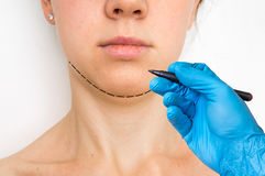 Plastic surgery doctor draw line on patient chin. Cosmetic surgery concept Stock Images