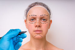 Plastic surgery doctor draw lines with marker on patient face Stock Image