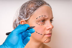 Plastic surgery doctor draw lines with marker on patient face Royalty Free Stock Images