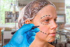Plastic surgery doctor draw lines with marker on patient face Royalty Free Stock Photo