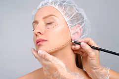 Plastic surgery. Doctor drawing perforation lines on woman`s face. Plastic surgery. Woman with dotted lines on the face. Anti-aging treatment and face lift Royalty Free Stock Photos