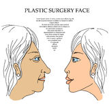 Plastic Surgery face 5. Caring for the environment ecology. Sweet illustration of hand-drawn cartoon-style Royalty Free Stock Image