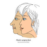 Plastic surgery face1. Plastic surgery face. Caring for the environment ecology. Sweet illustration of hand-drawn cartoon-style Royalty Free Stock Image