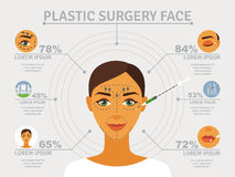 Plastic surgery face infographic poster. Cosmetic plastic facial surgery poster with infographic elements over eyelid correction and forehead lifts abstract Royalty Free Stock Photo