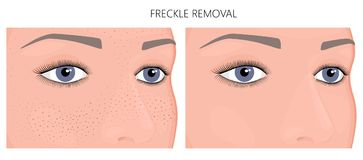 Plastic surgery_Freckle Removal. Vector illustration. Freckle removal on woman face half turn before, after cosmetic procedure. Close up view. For advertising of Stock Images