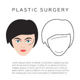 Plastic surgery infographics,  illustration Royalty Free Stock Image