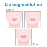 Plastic surgery lip. Correction and increase in volume, a woman face Royalty Free Stock Images