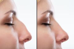 Before And After Plastic Surgery Of The Nose. Comparison Of Woman`s Nose Before And After Plastic Surgery stock photos