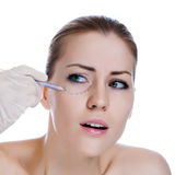 Before plastic surgery operetion. Royalty Free Stock Photography