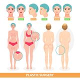 Plastic surgery vector patient woman before surgical operation facelifting or facial anti aging lift surgically or. Breast and face lined of surgeon Royalty Free Stock Images