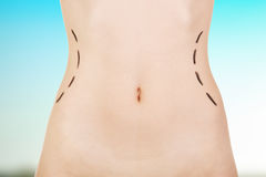 Plastic surgery, waist correction. Royalty Free Stock Photography