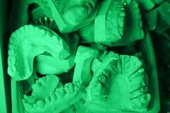 Plastick dentale fotografie stock