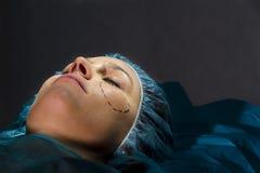 plastikkirurgi Arkivfoton