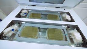 Plastiktaschen mit dem gelben Plasma gelegt, wenn Maschine an einem Labor analysiert wird stock footage