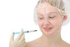 Plastische chirurgie, botox injectie Stock Afbeelding