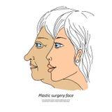 Plastische Chirurgie face1 Lizenzfreies Stockbild